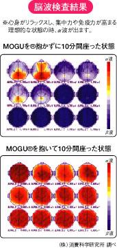 脳波検査結果